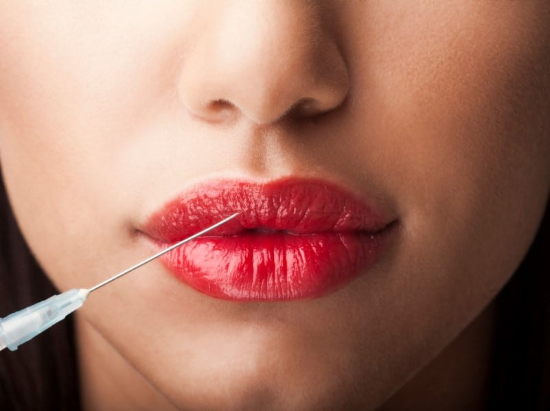 Dermal Fillers 101: A Guide for Students in Medical Esthetics Programs