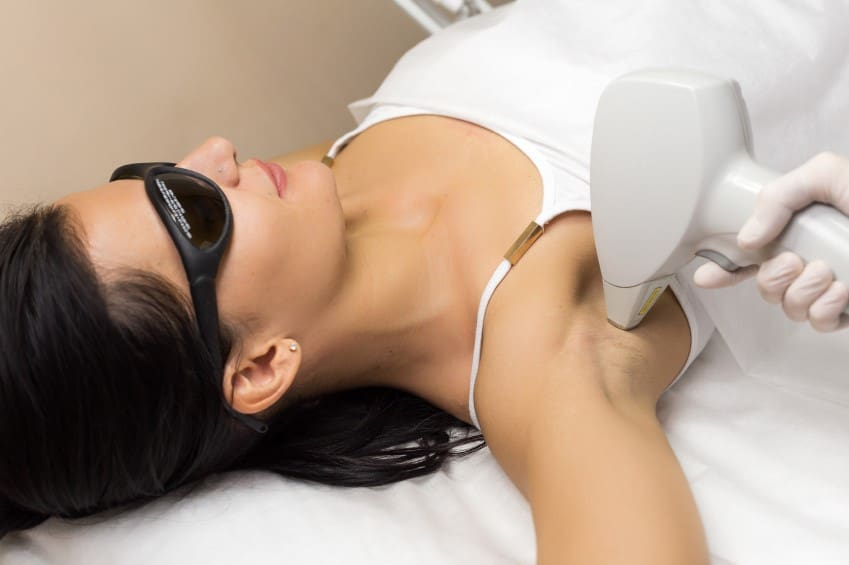 4 Common Myths About Laser Hair Removal Debunked