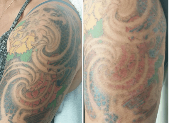 A work-in-progress tattoo removal at IBI's Mississauga campus clinic