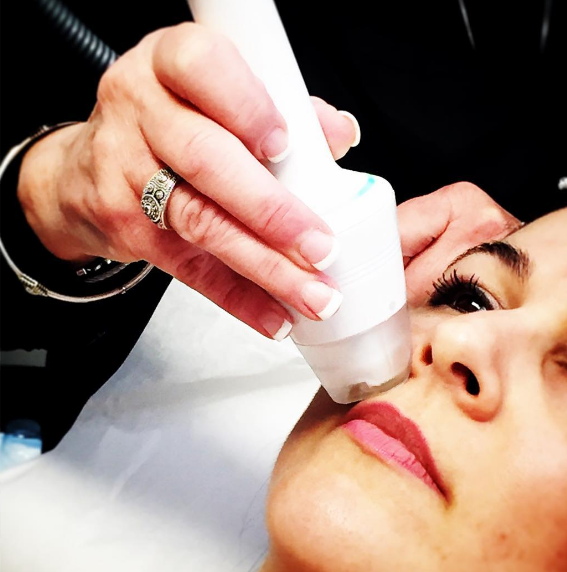 IBI students learn how to do a fractional Apollo treatment