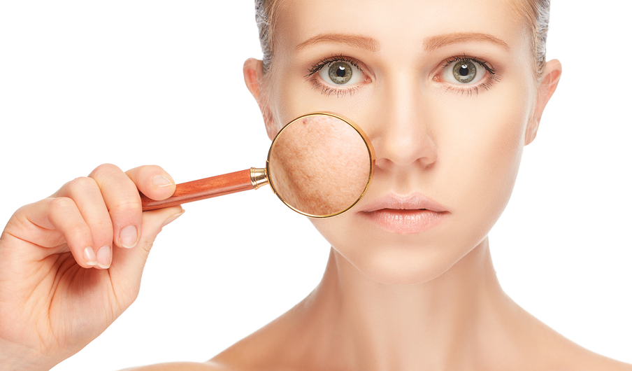 3 Facts About Skin Discolouration for Students of Medical Esthetics Programs