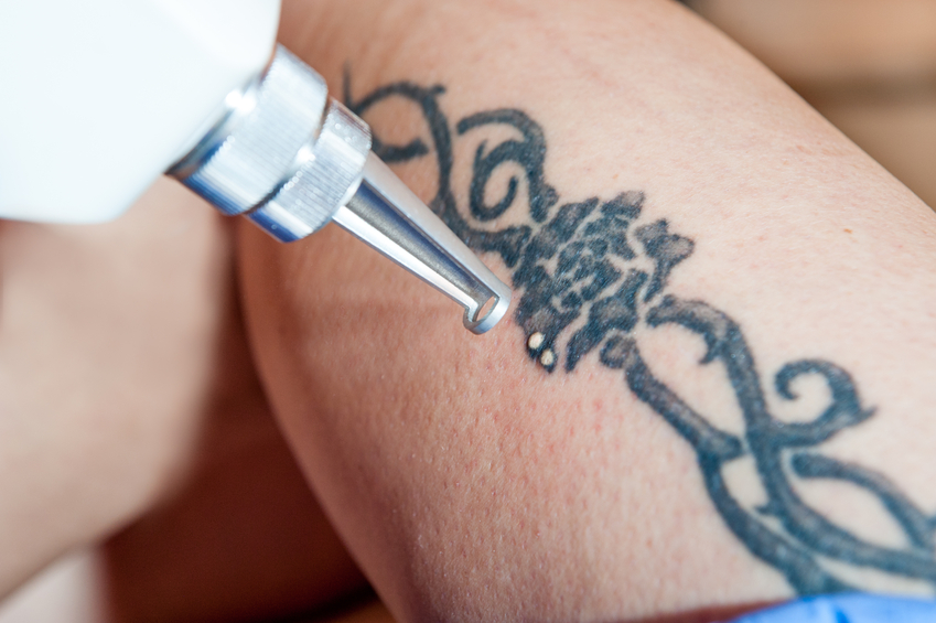 Students in Laser Tattoo Removal Courses: 5 Aftercare Tips for Your Clients to Follow