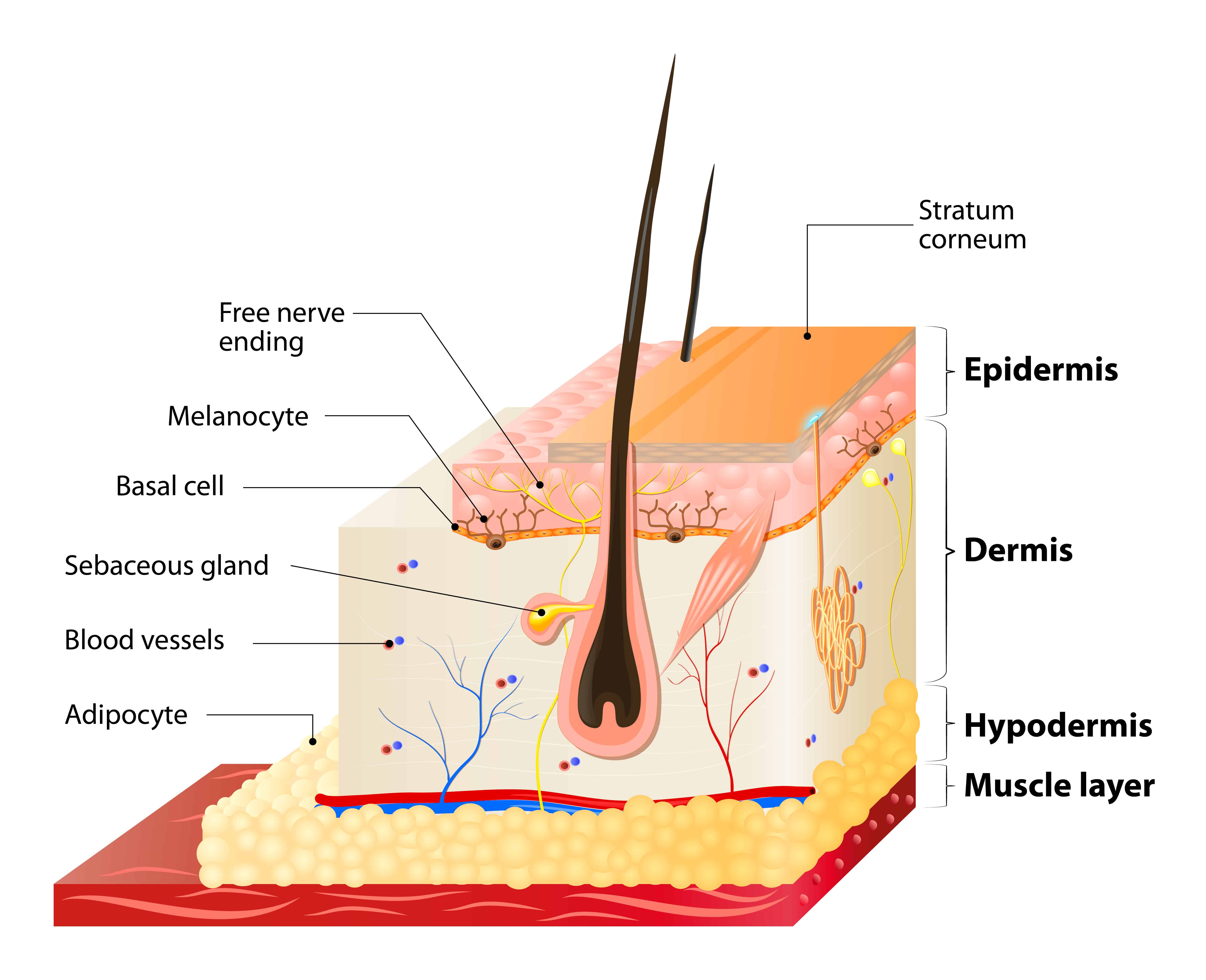 Microdermabrasion only affects the epidermis
