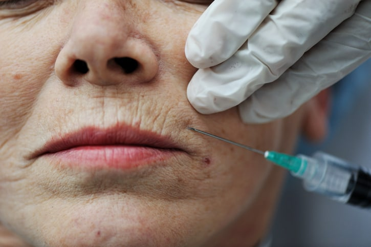 Dermal fillers are often used around the lips to treat fine lines