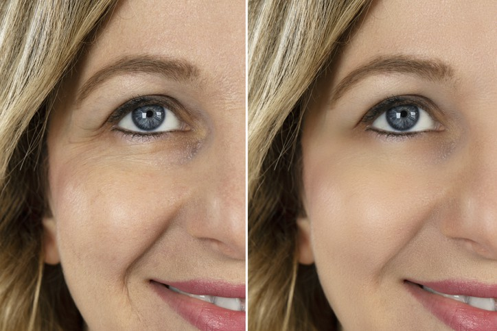 Botulinum Toxin Injection, Make Over Series, Face Lift, Human Face, Skin Care