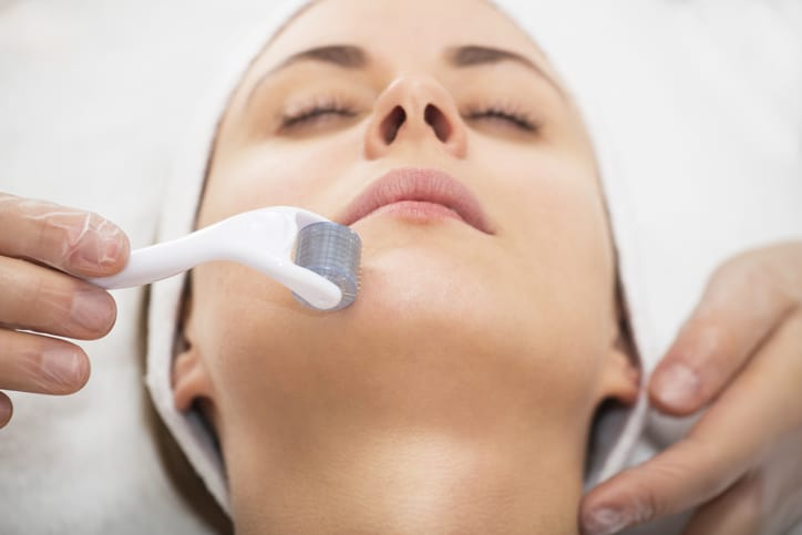 Face microneedling treatment with a meso roller.