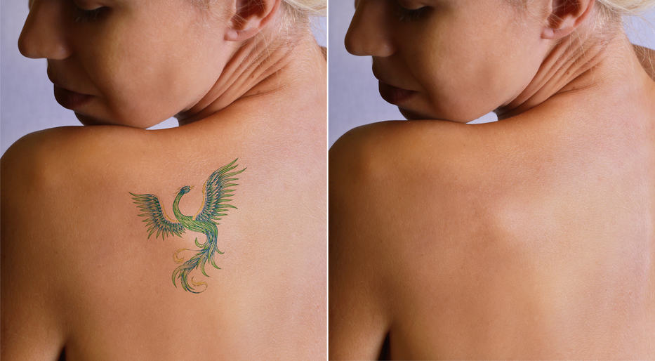 Lasering In on Tattoo Removal